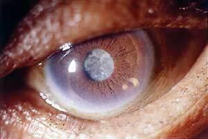 این علائم نشان دهنده بیماری چشم است