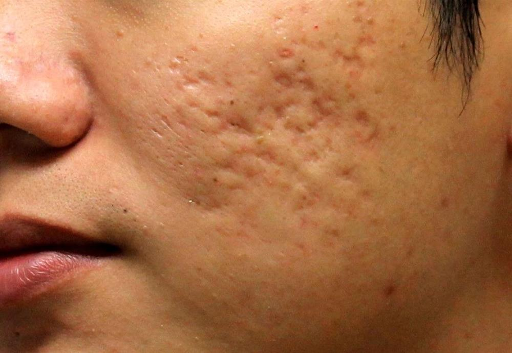 درمان جوش صورت با این روش ساده / نکته مهم در مصرف راکوتان