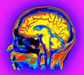 دو عامل پنهان اما موثر در بروز سکته مغزی