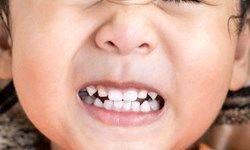 اضطراب و استرس در کودکان چه نشانه هایی دارد؟