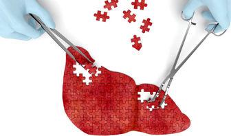 انواع بیماری کبد چرب + درمان کبد چرب