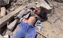 تخریب ۶۲ بیمارستان و ۱۱۵ مرکز درمانی یمن