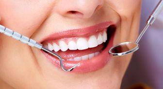 چگونه دندانهایی سفید و زیبا داشته باشیم؟