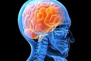 علائم اولیه سکته مغزی چیست؟
