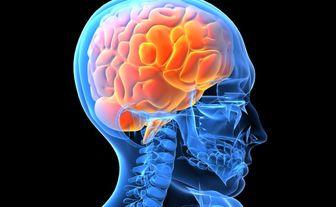 زمان طلایی درمان مرحله حاد سکته مغزی