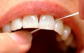عدم استفاده از نخ دندان شما را میکشد