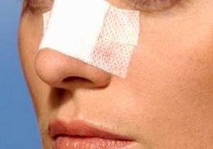 تب داغ جراحی بینی در مدارس