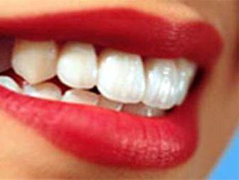 متولدین ۸۹ بیمه دندان میشوند!