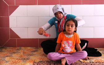 مشکلات کودکان قربانی اسیدپاشی