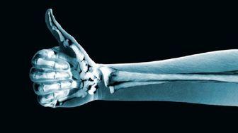 ویتامینی که مصرف بیش از اندازه آن خطر شکستگی استخوانها را افزایش میدهد!