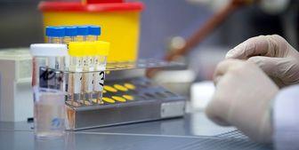 تایید داروی ایرانی برای التهاب ریه مبتلایان کرونا