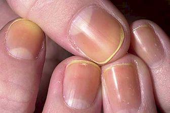 خط و خال مشکی ناخن نشانه چیست؟
