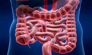 بیماری کولیت عصبی چیست و چگونه درمان میشود؟
