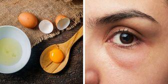 ۵ دلیل خستگی و پف چشمها پس از بیدار شدن از یک خواب خوب شبانه
