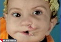 جراحی موفقیت آمیز کودکی با دو دهان + عکس