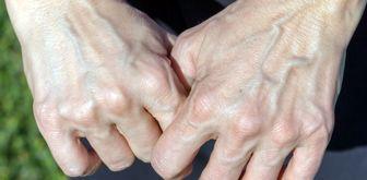 ۱۰ دلیل لرزش دستها که از آن بیاطلاعید