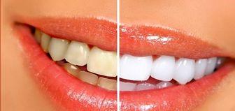 «دندانهایی سفید و درخشان» داشته باشید