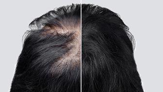 کدام مدل ریزش مو موقتی و برگشت پذیر است؟