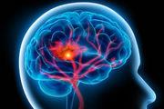 سکته مغزی سالانه حدود 100 هزار ایرانی