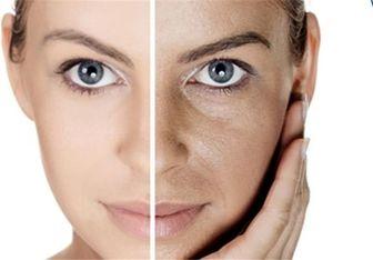 چگونه پوستی شفاف و بدون ترک داشته باشیم؟