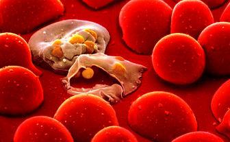 نشانههای سپسیس یا عفونت خون