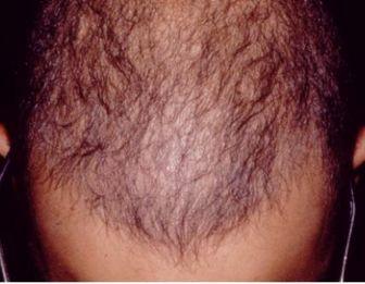 ۷ عامل اصلی در ریزش مو