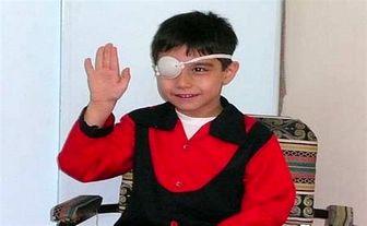 تنبلی چشم و عواقب جبران ناپذیری که در کمین کودکان