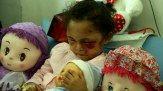 تازه ترین عکس های بثینه دختر بچه یمنی