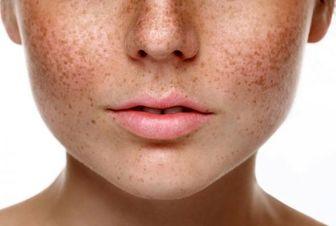 ارتباط لکهای قهوه ای روی صورت با بیماری کبدی