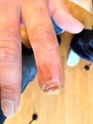 احیای انگشت قطع شده انسانی با مثانه خوک