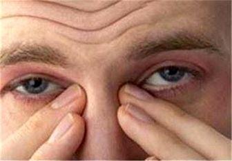 انحراف چشمی نشانه چه بیماری خطرناکی است؟