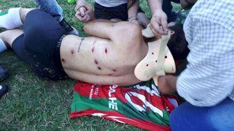 حمله وحشیانه پلیس به فوتبالیست های آرژانتینی/عکس