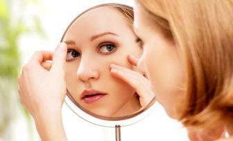 راهکارهای مفید برای نگهداری از پوستهای حساس