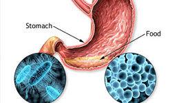عوارض یبوست و راه درمان آن
