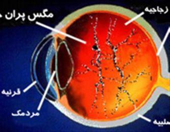 بررسی علائم و روش های درمان مگس پران