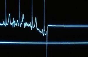 همه چیز درباره مرگ ناگهانی قلبی در جوانان