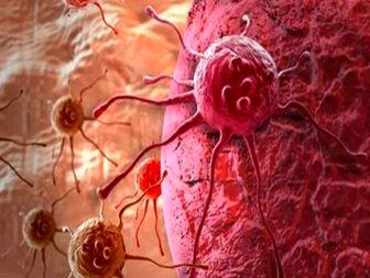 سرطان پوست، شایعترین سرطان در بین مردان یزدی