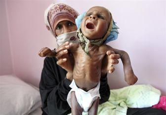 ۸۲۰ میلیون نفر در جهان از سوء تغذیه رنج میبرند