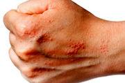 ۸ درمان خانگی برای اگزما