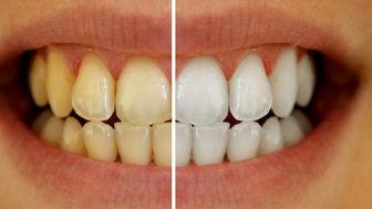 ترفندهایی خانگی برای سفید کردن دندان