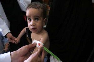خشم مردم یمن از اهداف سیاسی برنامه جهانی غذا