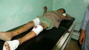 قطع شدن اعضای بدن کودکان یمنی توسط عرب ها