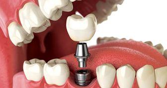 ساخت رباتهایی برای تولید ایمپلنت دندانی