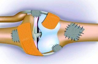 روشهای تشخیصی پوکی استخوان