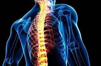 کشف روشی جدید برای ترمیم آسیب نخاعی