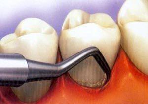 با مواد طبیعی از شر جرم دندان خلاص شوید