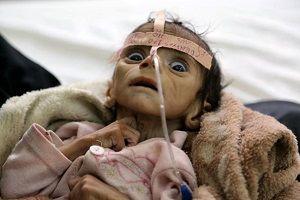 ۲ میلیون کودک یمنی بین مرگ و زندگی به سر میبرند
