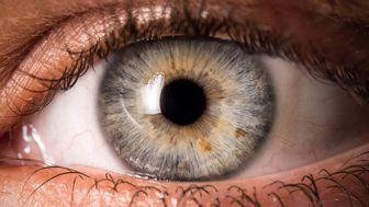 شایعترین علتهای تنبلی چشم