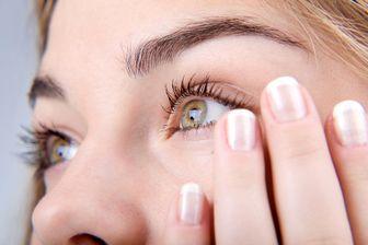 نابینایی در چهارشنبه سوری/ اقدامات ابتدایی برای درمان آسیب چشم