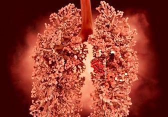 سرطان ریه را 5 سال قبل از شروع تشخیص دهید و درمان کنید!